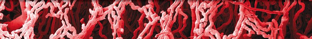 Case Reports in Vascular Medicine