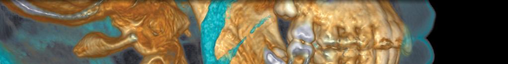 ISRN Anatomy