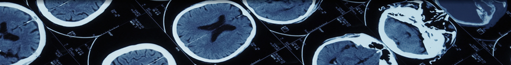 Case Reports in Radiology